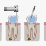 ¿Qué es una endodoncia y en qué ocasiones hay que hacerla?